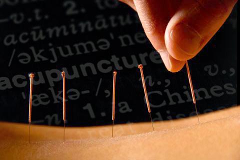 acupuncture program